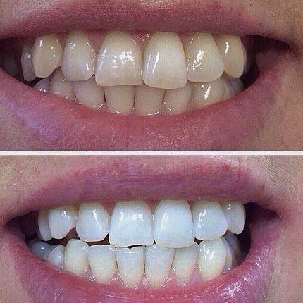 """Косметическое отбеливание зубов """"Классик"""""""